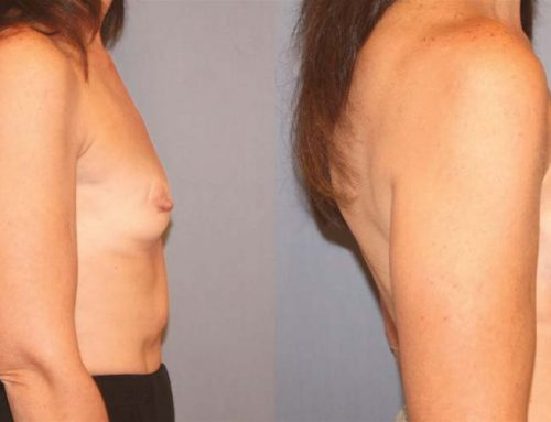 Breast Augmentation H2