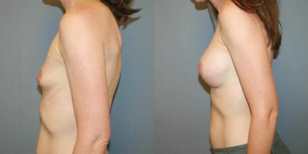 breast augmentation fresno