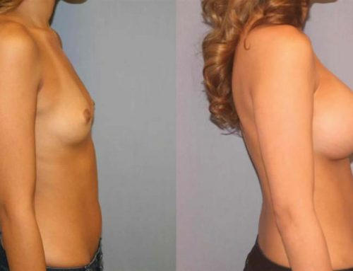 Breast Augmentation K2