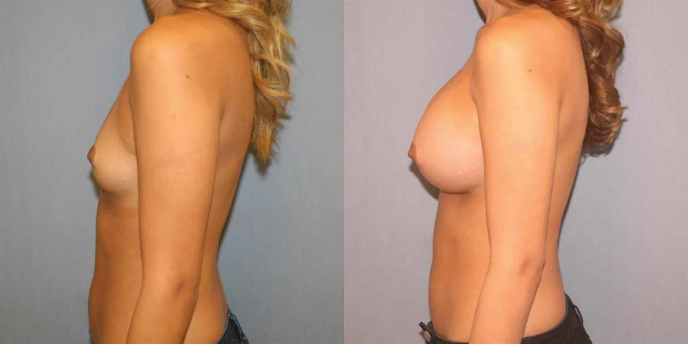 Breast Augmentation K3