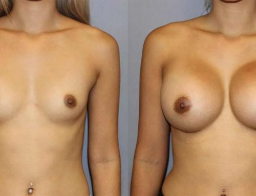 Breast Augmentation L1