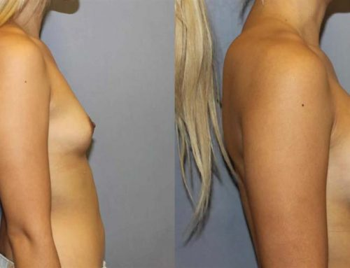 Breast Augmentation L2