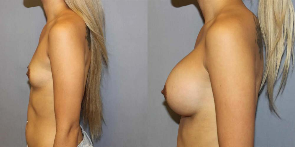 Breast Augmentation L3