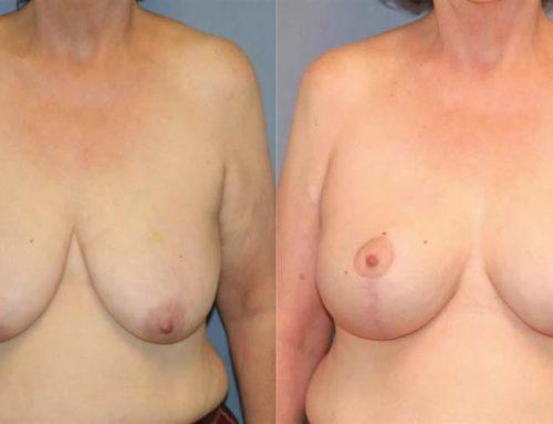 Breast Lift C1