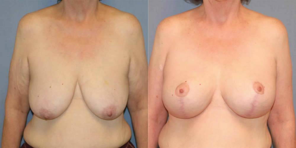 Breast Lift C1