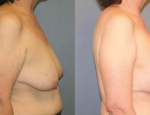 Breast Lift C2