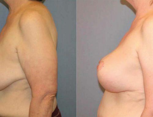 Breast Lift C3