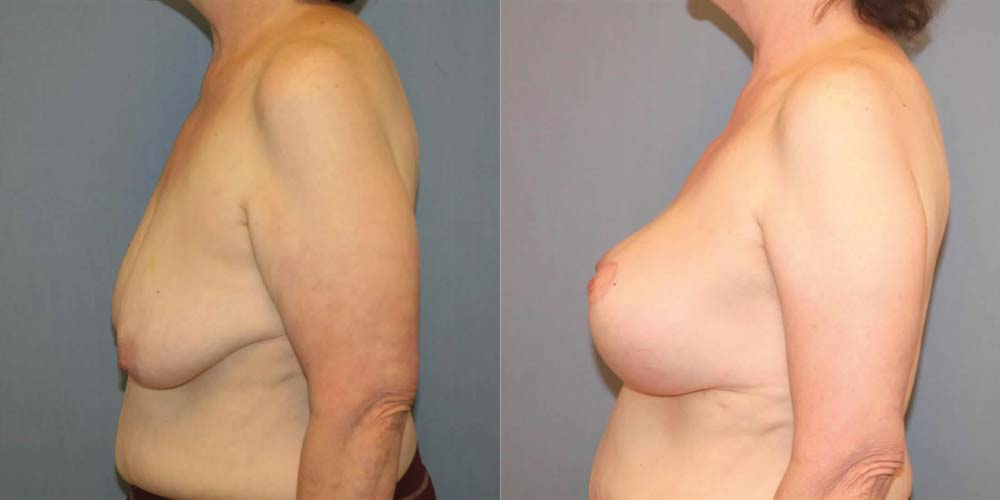 Breast Lift C3