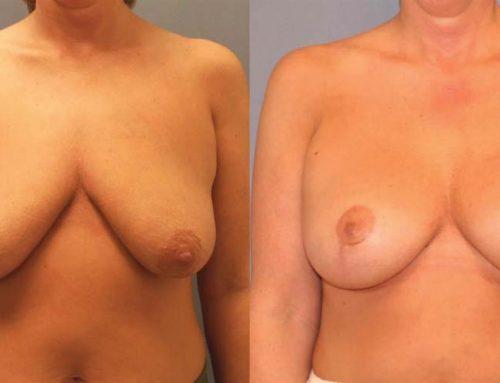 Breast Lift D1