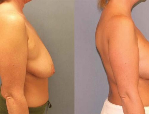 Breast Lift D2