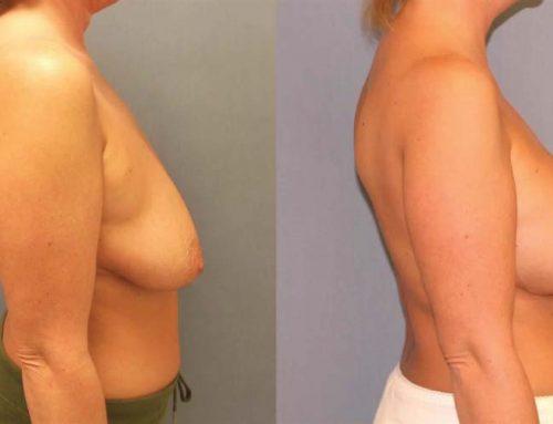 Breast Lift D2