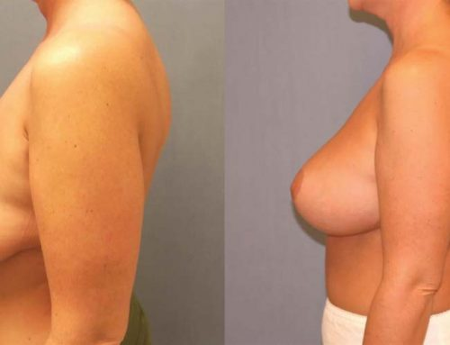 Breast Lift D3