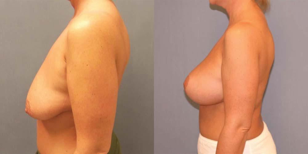 Breast lift fresno california