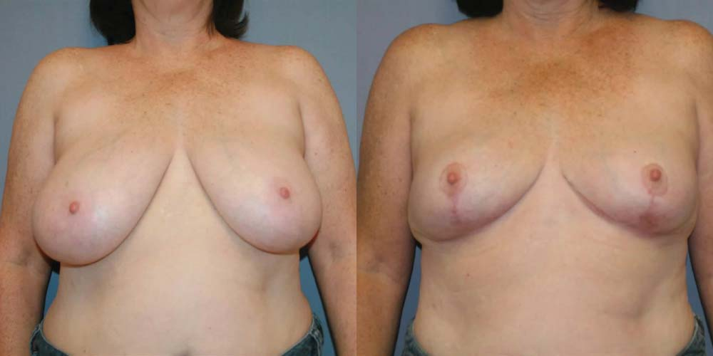 Breast Reduction A1