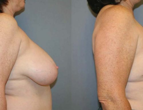 Breast Reduction A2