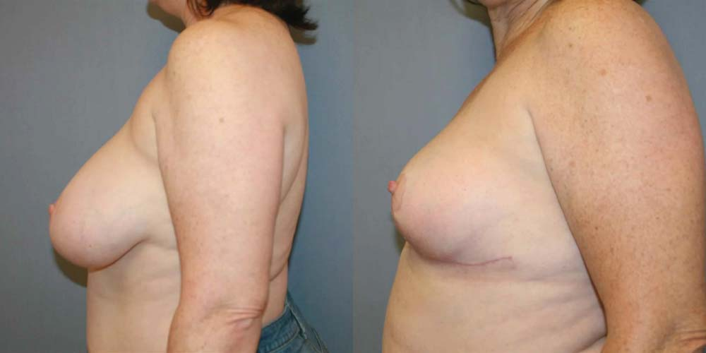 Breast Reduction A3
