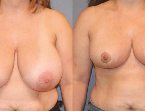 Breast Reduction B1