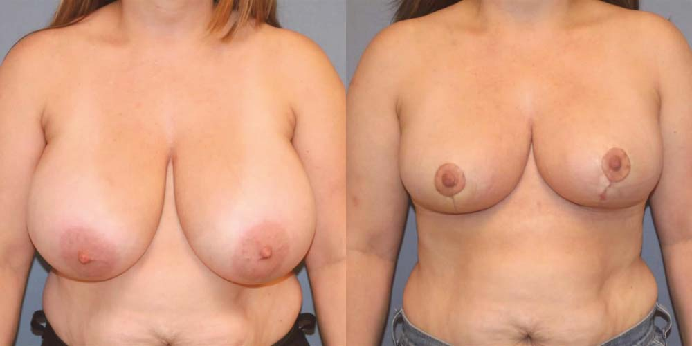 Breast Reduction B1