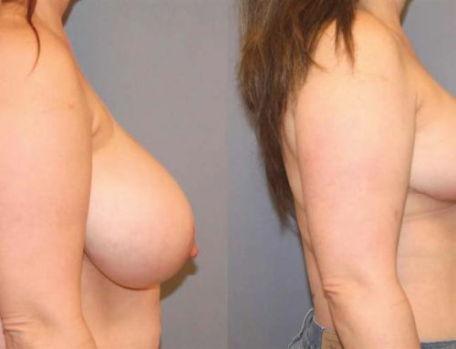 Breast Reduction B2