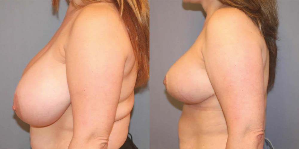 Breast Reduction B3