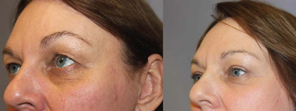 Face Procedures C2