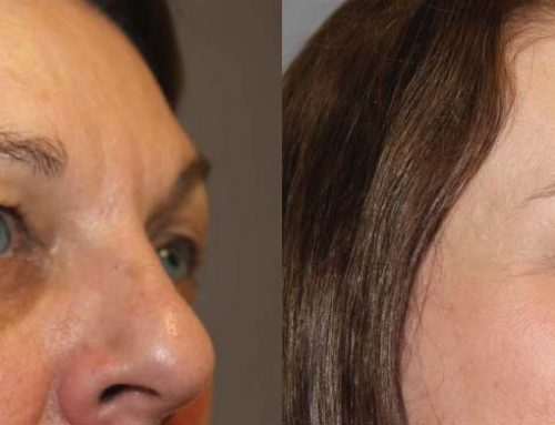 Face Procedures C3